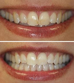 new jersey teeth whitening picture 6