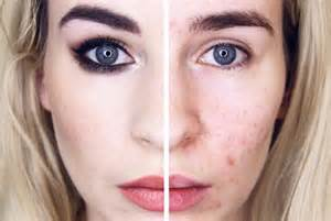 why does acuzine work to clear acne picture 10