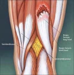 diagnose muscle tears picture 1