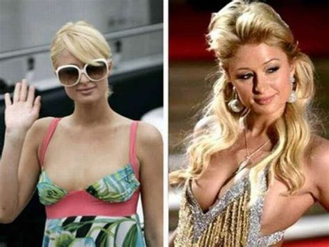 celebrity breast augmentation picture 5