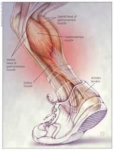 gastrocnemis muscle tear treatment picture 5
