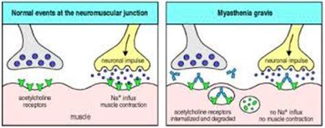 fatigue symptoms muscle picture 2