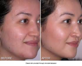 best treatment for acne scars picture 9