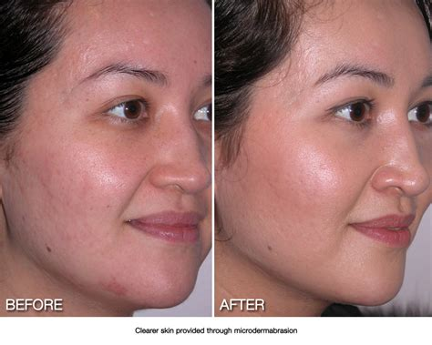 acutane for acne picture 15