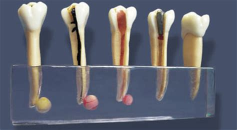 tooth pain nerve inflammation picture 1