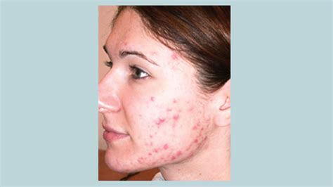 diseases of the skin picture 6
