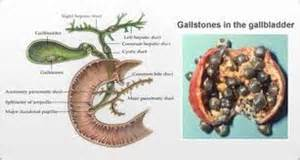 Cholesterol gall bladder removal statins picture 14