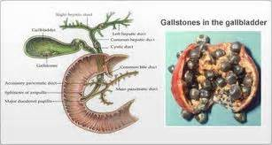 how do you take a gall bladder out picture 7