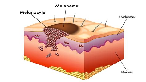 what is skin cancer picture 2