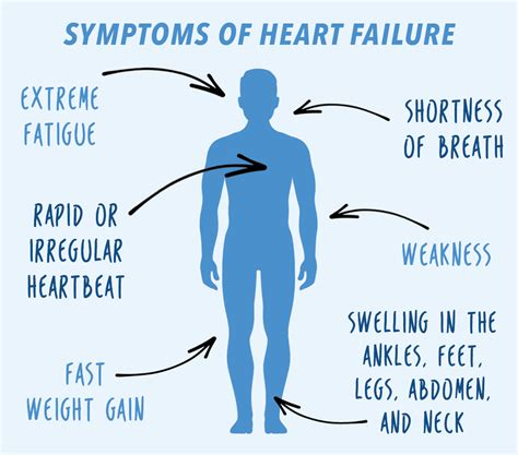 weight gain and heart failure picture 1