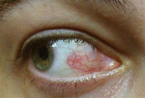 symptoms viral conjunctivitis bacterial conjunctivitis picture 7