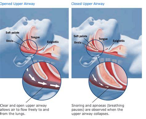 extreme sleep apnea picture 9