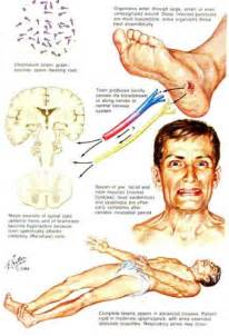 info on muscle spasms picture 1