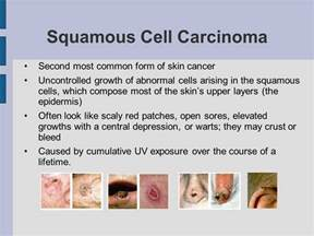 abnormal skin growth icd 9 picture 3
