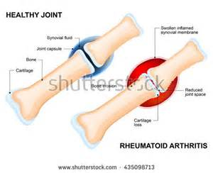 arthritis in every joint of the body picture 13