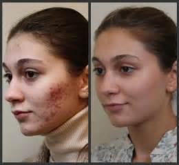 rosacea laser treatment picture 9