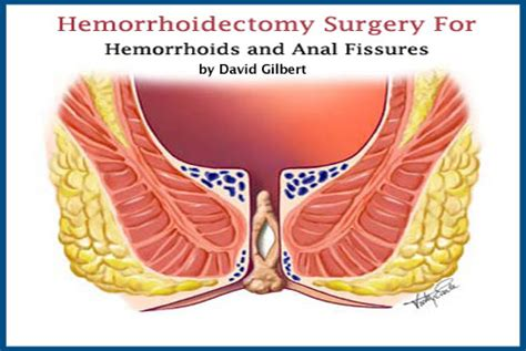what to expect after hemorrhoid surgery picture 1