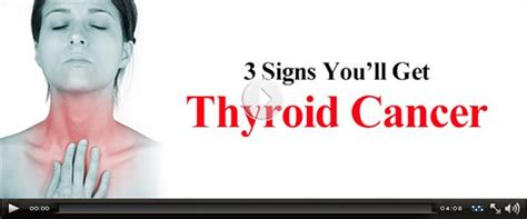 scum doctor thyroid cancer signs symptoms disease prevention picture 2