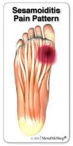 joint ball foot pain picture 2