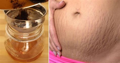 nature sunshine stretch marks picture 10