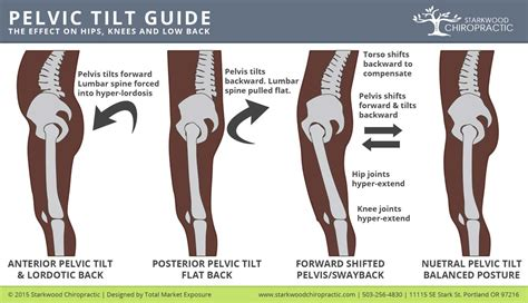 what are the symptoms of a tight pelvic picture 3