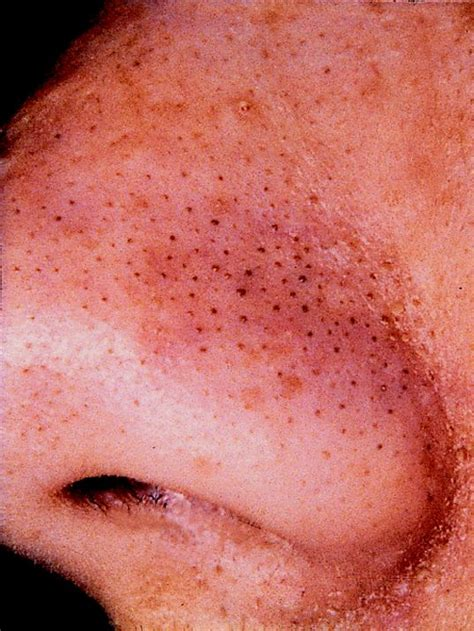 rosacea and skin cancer picture 11