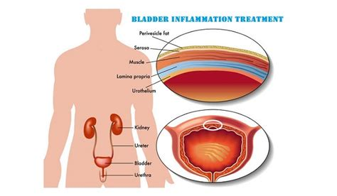 bladder lining picture 2