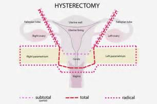 skin change after hysterectomy picture 13
