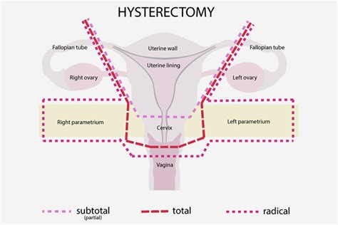 aging after hysterectomy picture 1