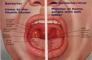 Bacterial virus white pus on tonsils picture 2