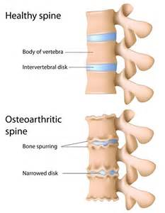 degenerative joint disease of cervical spine picture 3