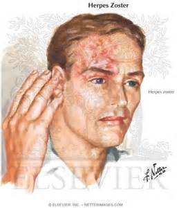 neurologic symptoms of herpes zoster picture 11
