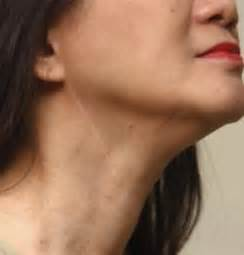 lump neck muscle picture 5