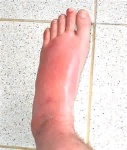 liver failure + swollen ankles picture 10
