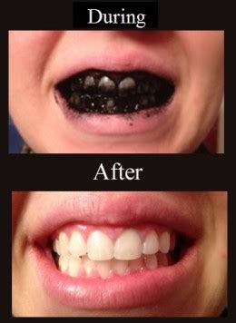 children how to whiten yellow teeth picture 5