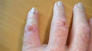 apply garlic on skin cancer picture 10