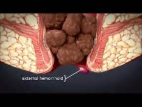 how long hemorrhoids feel after banding picture 5