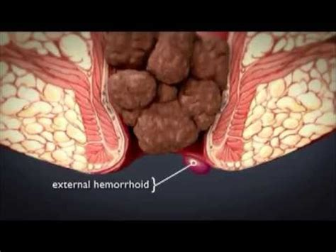 cortana what's a home remedy for hemorrhoids picture 4