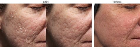 is sculptra for acne scares picture 3