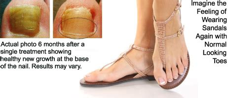 at your feet footcare/patholase picture 3