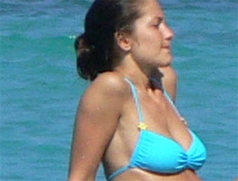 herpes on a woman pictures picture 15