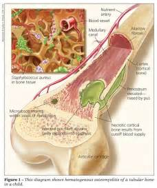 hip joint infection and cutaneous fistulas picture 8