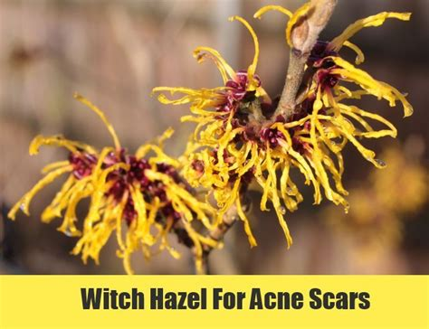 witch hazel is great for acne picture 10
