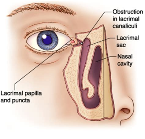 bacterial eye infection picture 11