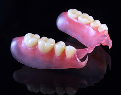 can extra teeth be added to valplast partial picture 2
