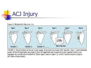acromio-clavicular joint picture 14