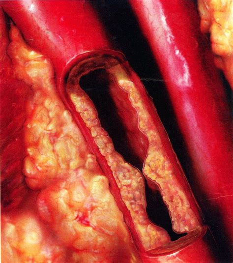 fatty deposits in penis blood flow picture 12