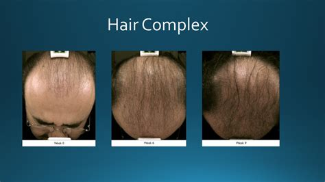 derma needle hair regrow picture 7