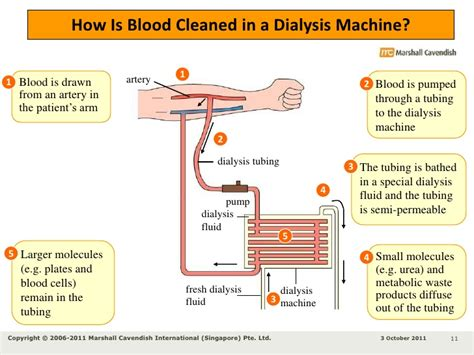 blood pressure machine picture 14
