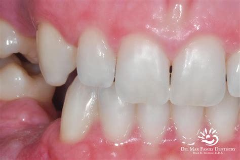 del mar teeth whitening picture 6